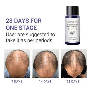 Haarwachstum ätherisches Öl Serum 20ml Haar Schnell Nachwachsen Behandlung