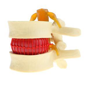 Anatomisch Lernwerkzeug Vergrößerung 2x Menschlich Wirbelsäule Lendenwirbelsäule Bandscheibenvorfall Modell für Anatomie Hilfsmittel Laborbedarf