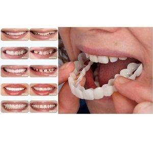 2x Smile Obere Falsche Zähne Dental Veneers Zahnersatz Zahnabdeckun-White