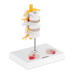 physa Bandscheibe Modell - Bandscheibenvorfall - koloriert