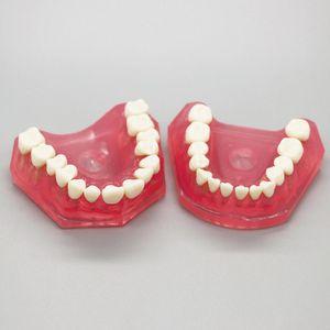 1Pcs Dental Zähne Modell Studie Lehren Standard mit Abnehmbare Zähne top