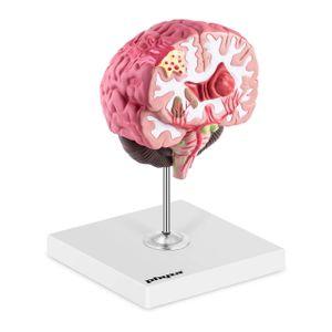 physa Gehirn Modell - pathologisch - koloriert